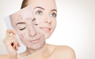 How Does IPL Treatment for Acne Really Work?